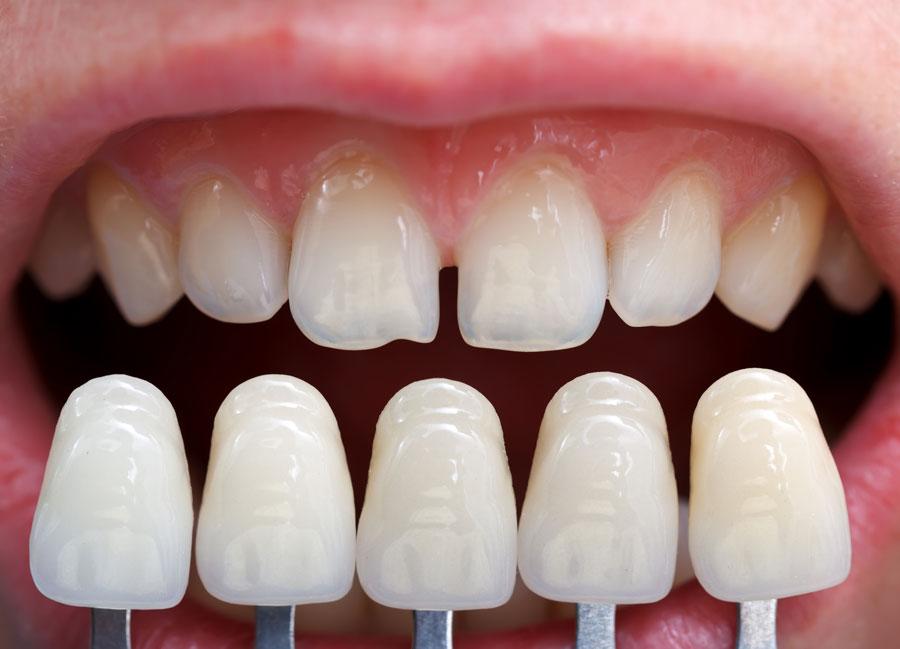 Dental Veneers - Dental Rexburg