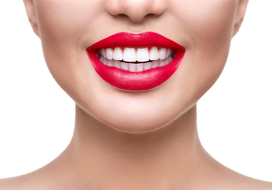 Dental Veneers - Rexburg Dental