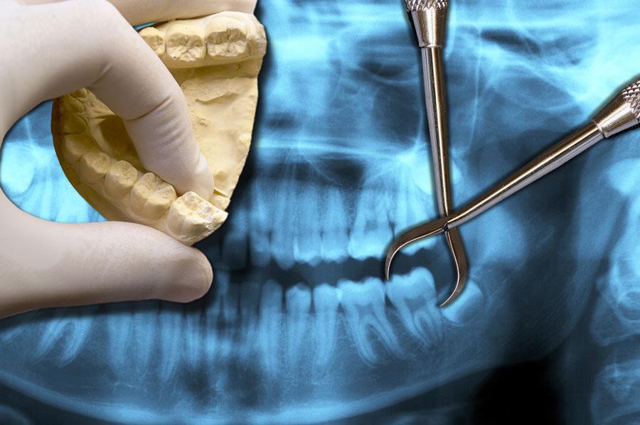 Wisdom Tooth Extraction - Rexburg Dentist